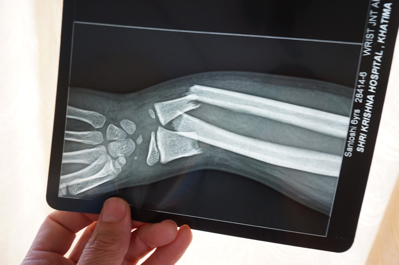 Clean breaks of both bones. Hurts me just to look at this x-ray.